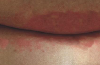 Pilz Unter Brust Stinkt